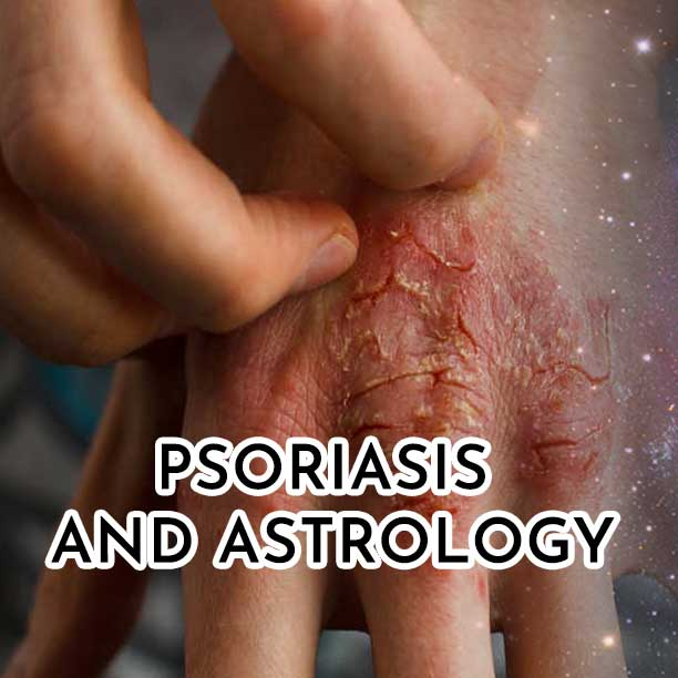 Psoriasis and astrology