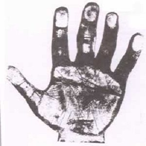 The Hand of a Convicted Murderer